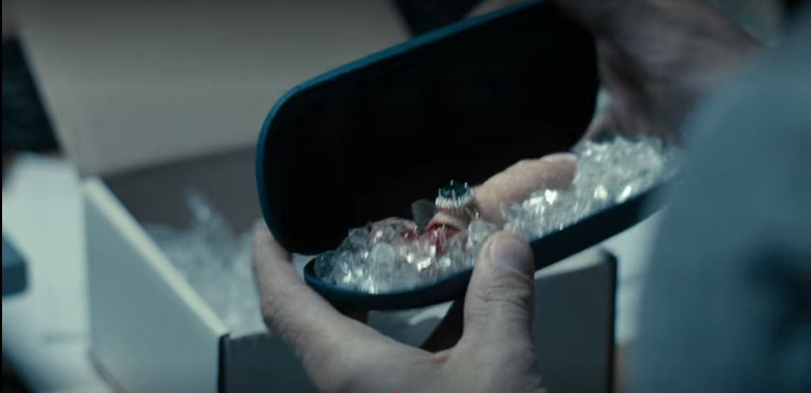 A severed finger with a ring on it lies in ice in a small case