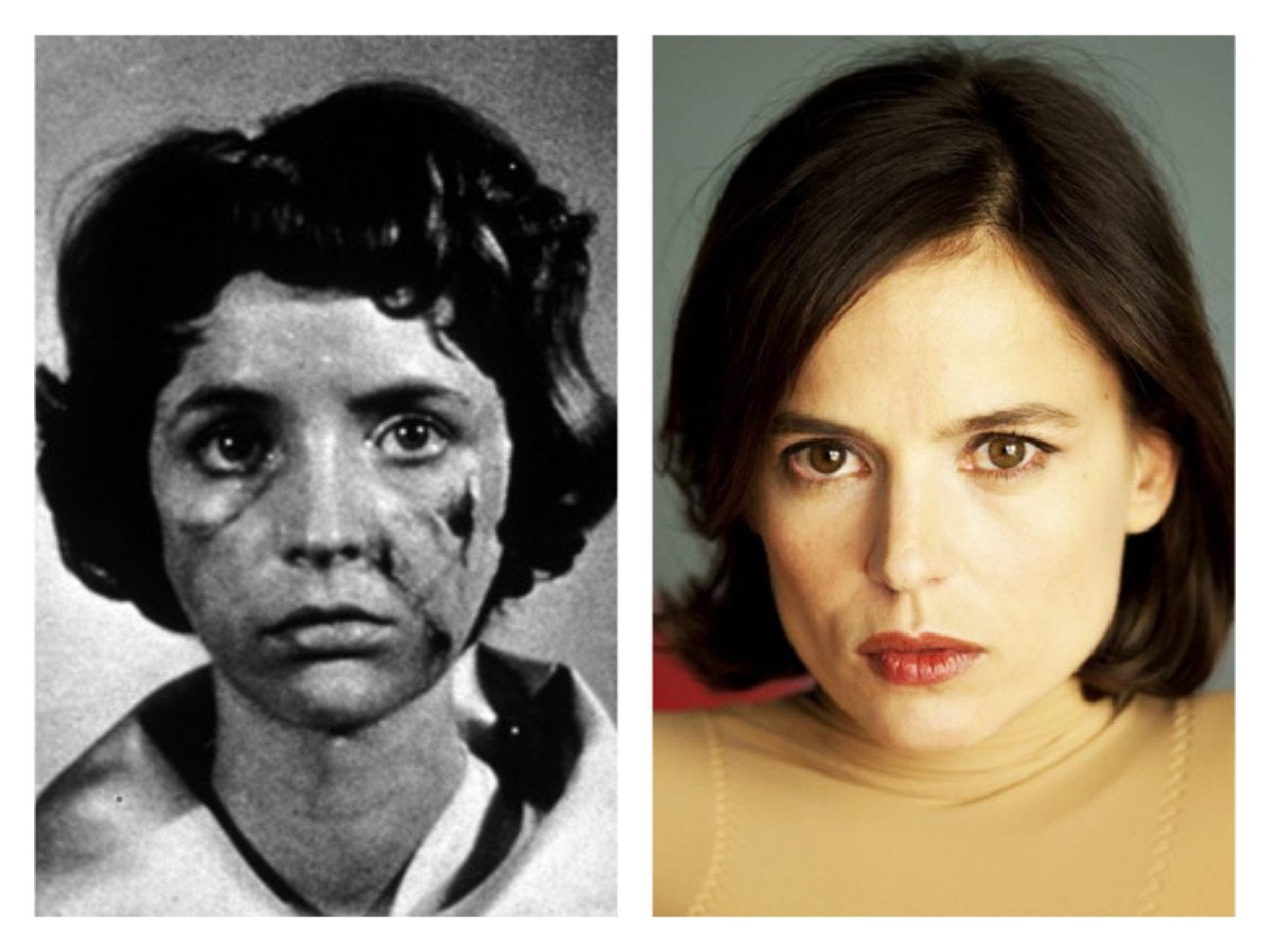 Juxtaposition of Christiane in Eyes Without a Face and Vera in The Skin I Live in.
