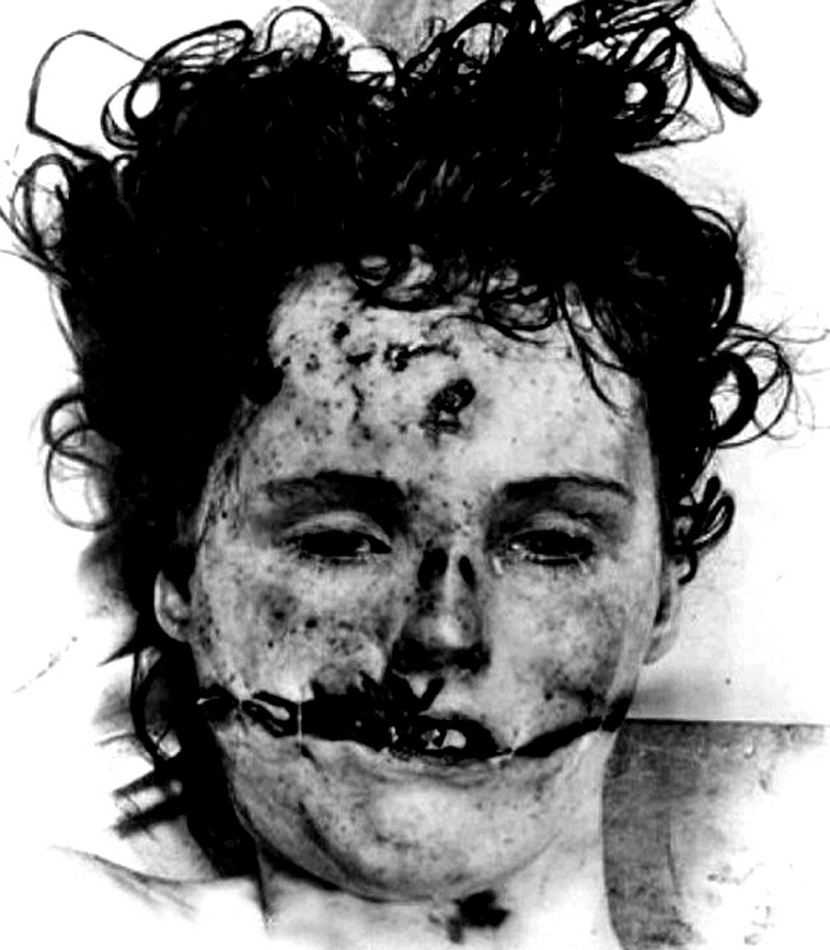 Real autopsy photo of Elizabeth Short