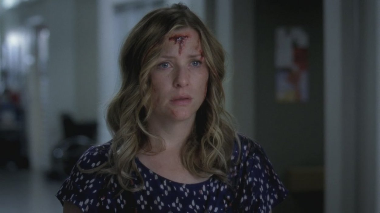 Arizona stands in the Hospital hallway covered in scratches from the wreck, scared for Callie.