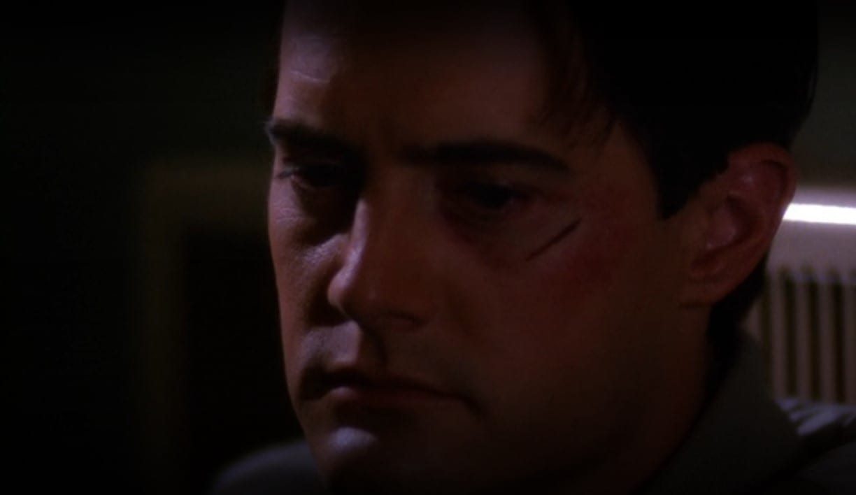 Agent Cooper sits in the shadows with a small scar under his eye as he considers if he has been good for the town of Twin Peaks.