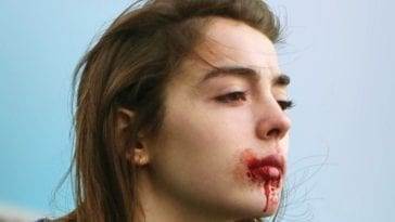 Blood oozes out of Justine's mouth